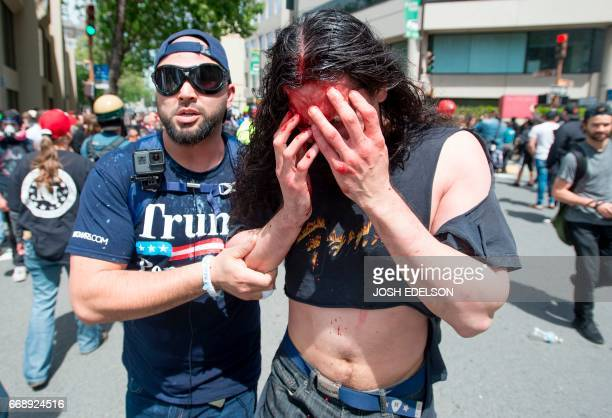 A Trump supporter assists an injured man who was beat up and bloodied as multiple fights continue to break out between Trump supporters and antiTrump...
