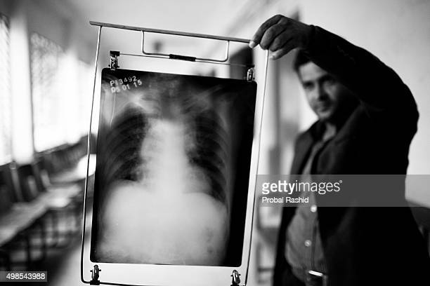 Tuberculosis is a worldwide public health problem The incident of TB is much higher in developing countries such as Bangladesh The country ranks...