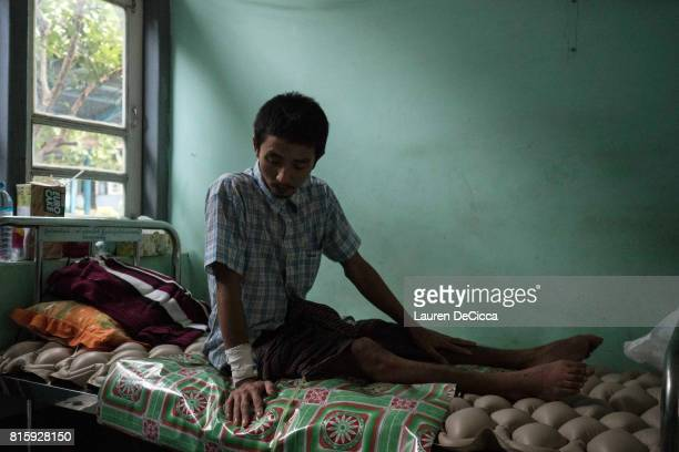 Tun Min Naing a 30 year old carpenter from Hat Yai in Southern Thailand sits on a bed at the Myawaddy Hospital in Myawaddy Myanmar on July 15 2017 in...