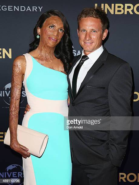 Turia Pitt and partner Michael Hoskin arrive at the world premiere of Unbroken at State Theatre on November 17 2014 in Sydney Australia