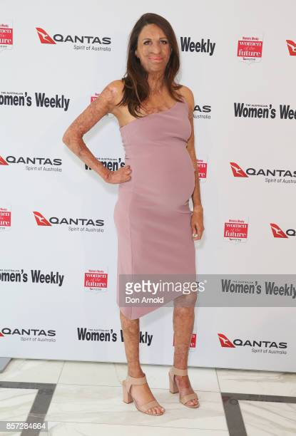 Turia Pitt arrives ahead of the annual Women of the Future awards on October 4 2017 in Sydney Australia