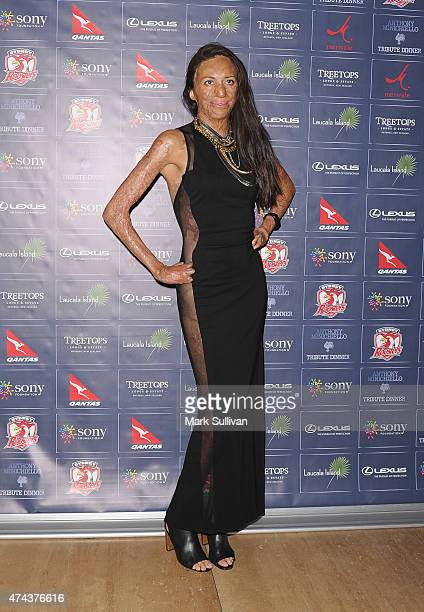 Turia Pitt at a tribute dinner hosted by Anthony Minichiello for the Sony Foundation at The Ivy on May 22 2015 in Sydney Australia