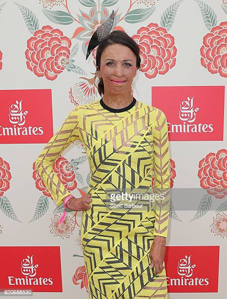 Turia Pitt poses at the Emirates Marquee on Oaks Day at Flemington Racecourse on November 3 2016 in Melbourne Australia