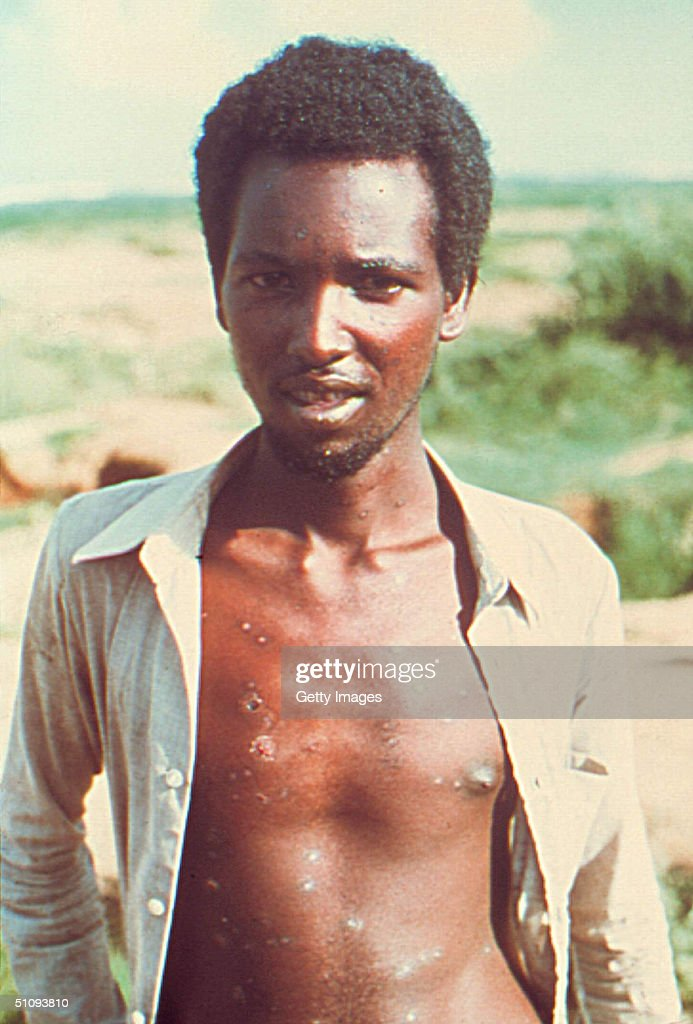 Twenty-Three-Year-Old Ali Maow Maalin, The Last Known Person In The World With Smallpox, Is Shown In This Undated Photo In Merka, Somalia. Drug Company Aventis Pasteur Announced March 29, 2002 That It Would Donate To The Government 75-90 Million Doses Of A Smallpox Vaccine It Has Been Keeping In Cold Storage For Decades. The Vaccinia Virus Is Normally Confined To Cattle, But Is Conveyed To Humans Through Vaccination, Imparting Immunity To The Smallpox Virus.