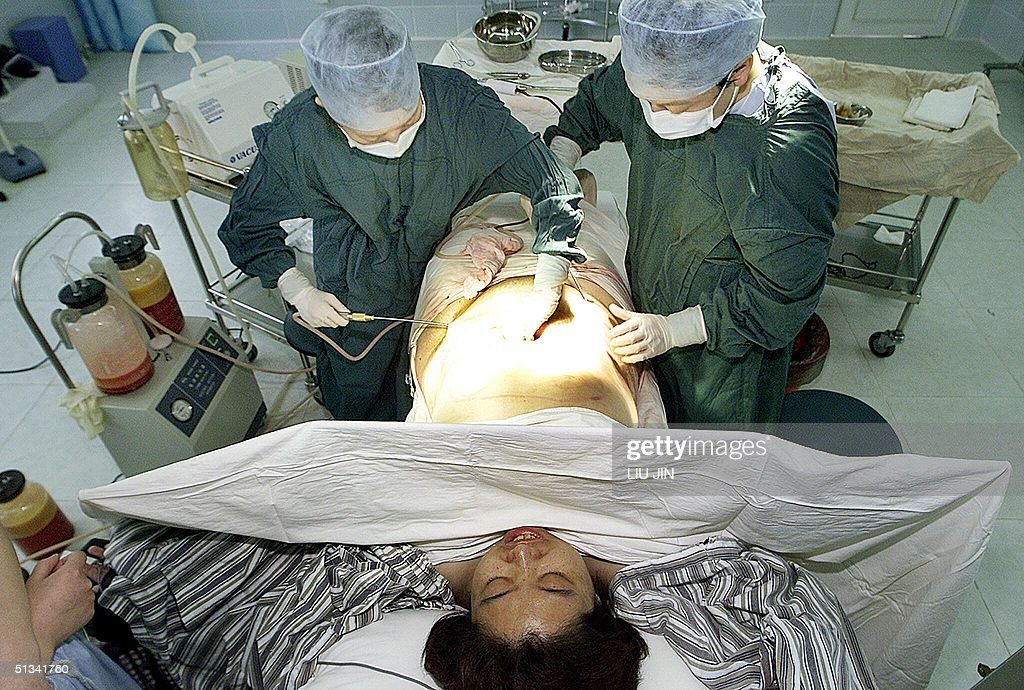 Two Chinese doctors perform a liposuction on a woman at a hospital in Shanghai 04 August 2002 Plastic surgery may be a new procedure in China but...
