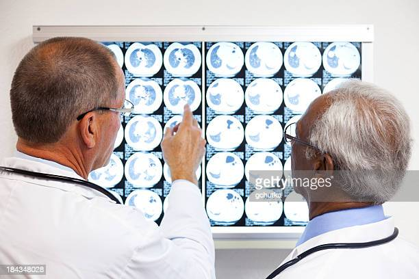 Two doctors viewing x ray results