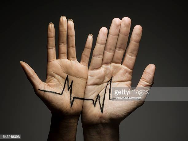 Two hands connected by a dramatic graph