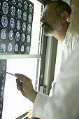 Two male doctors looking at X-Rays and MRI scans, pointing at scan