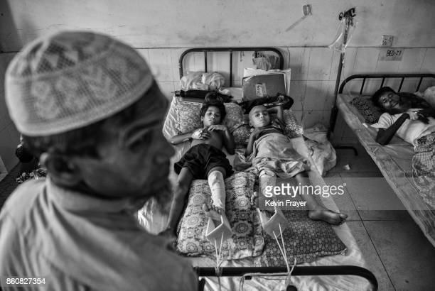 COX'S BAZAR BANGLADESH OCTOBER 03 Two Rohingya refugee boys who had their legs broken by the Myanmar army share a bed in the 'Rohingya Ward' at Sader...