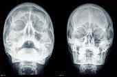 Two skulls x-rays