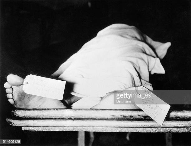 Two tags on the feet of bank robber John Dillinger in the Cook County morge after he was shot by government agents