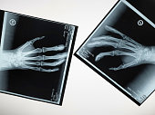 Two x-ray hands reaching out to touch each other