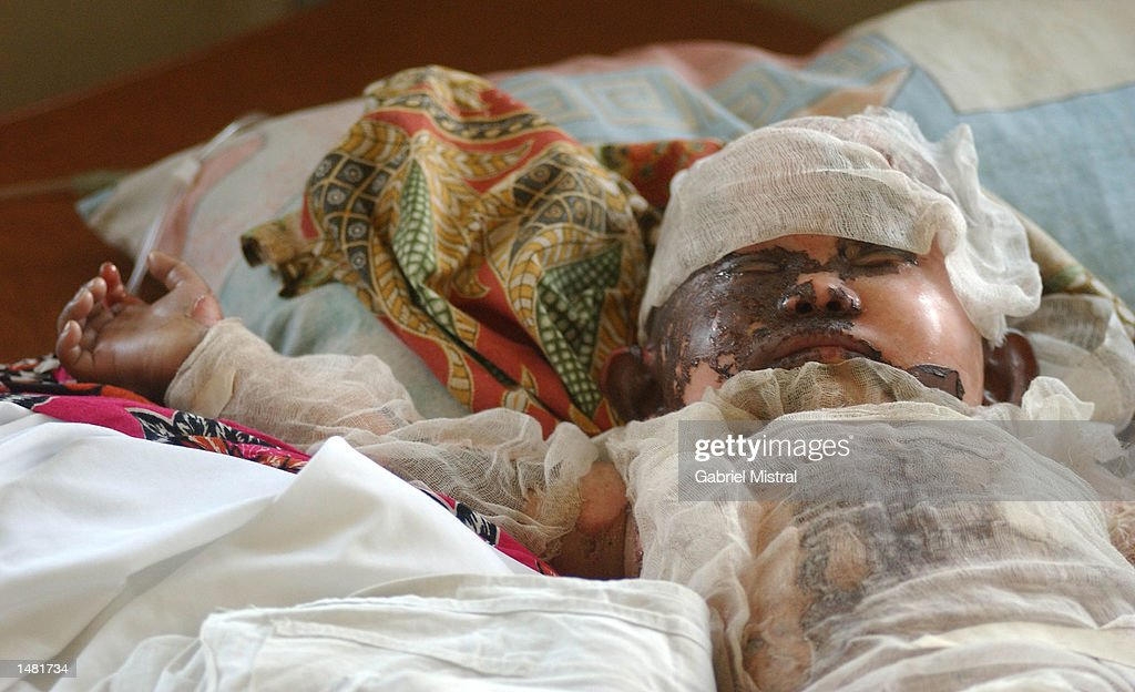 A twoyearold Filipino bomb blast victim Bobby John Gonzales recuperates at a hospital October 18 2002 in Zamboanga City in southern Philippines Two...