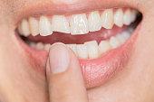 ugly smile dental problem. Teeth Injuries or Teeth Breaking in Male. Trauma and Nerve Damage of injured tooth, Permanent Teeth Injury.