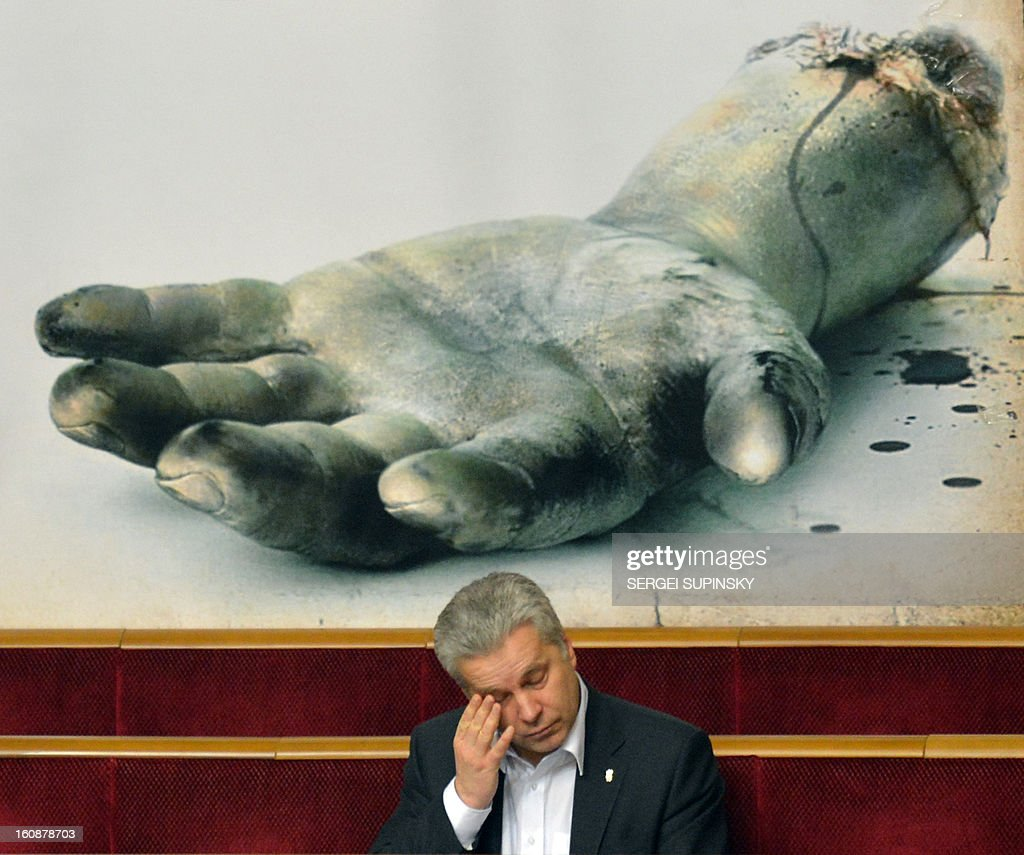 A Ukrainian opposition deputy rubs his eye on February 7, 2013 in front of a placard showing a severed hand in the parliament as opposition lawmakers block the parliament for a third day to prevent the session from opening in Kiev. The dispute in Ukraine's one-chamber parliament, known as the Verkhovna Rada, centers on opposition demands for each deputy to vote individually. Voting in the Ukrainian legislature is done electronically and lawmakers can delegate the right to vote to their colleagues. The opposition and critical media have repeatedly accused pro-government deputies of frequently missing parliamentary sessions and asking colleagues to vote on their behalf. AFP PHOTO / SERGEI SUPINSKY