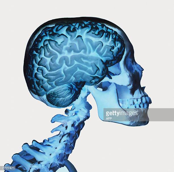 Undated file photo showing skull and brain with the help of double exposure The picture was made by British photographer and biologist David Barlow...