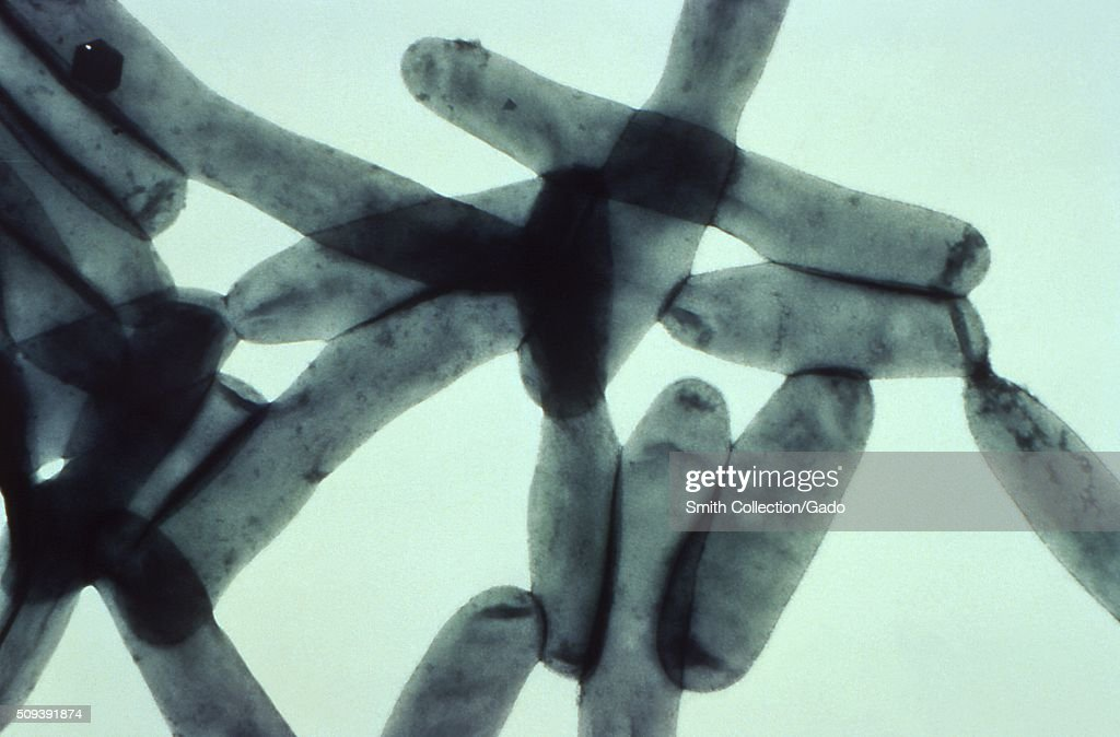Under a magnification of 43700X this transmission electron micrograph created from a whole preparation of Legionella pneumophila bacteria that had...