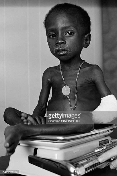 Undernourished Biafran child in a refugee camp in Gabon