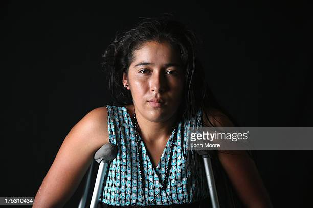 Undocumented Guatemalan immigrant Elvira Lopez stands on crutches at the Jesus el Buen Pastor shelter on July 31 2013 in Tapachula Mexico She has...
