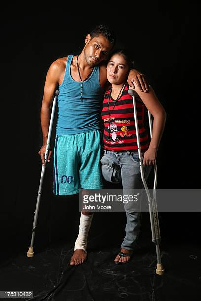 Undocumented immigrants Eduardo Contreras from Honduras and Elvira Lopez from Guatemala stand on crutches at the Jesus el Buen Pastor shelter on July...
