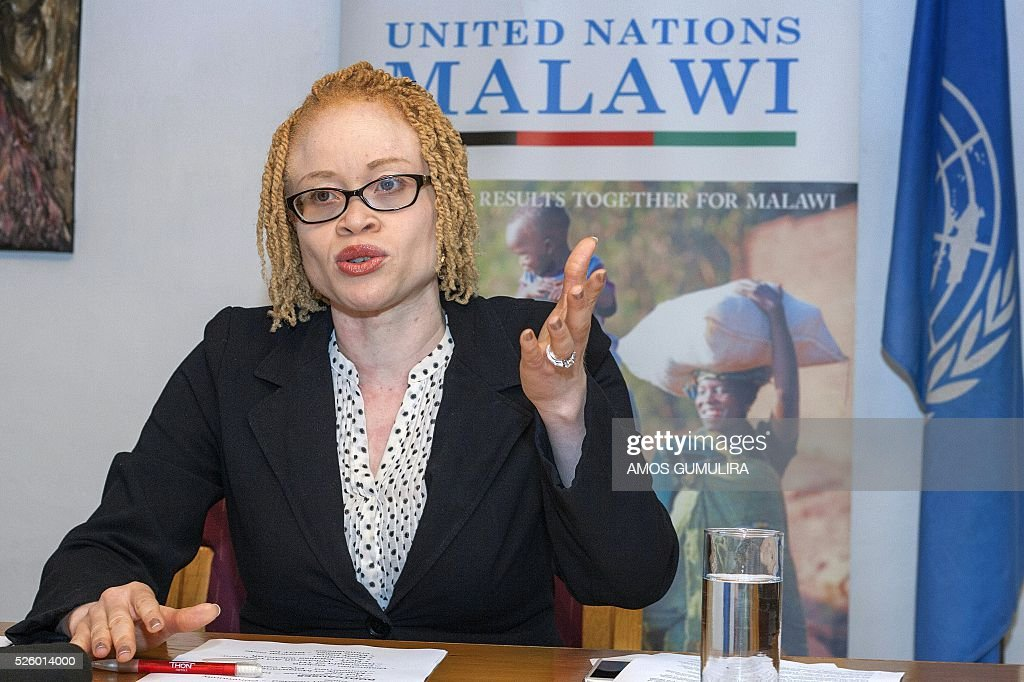 United Nations' Independent Expert on the Enjoyment of human rights by persons with albinism Ikponwosa Ero addresses a press conference at the end of her official visit to Malawi on April 29, 2016. Malawi's estimated 10000 albinos 'are an endangered group facing a risk of systematic extinction over time if nothing is done to stem the tide of atrocities,' a UN expert warned on today. Ikponwosa Ero, a UN independent expert told journalists at the end of her 12-day assessment of rights of albinos in Malawi that the situation 'constitutes an emergency, a crisis disturbing in its proportions.' She said according to police, 65 cases of attacks, abductions and murders of albinos have been recorded since end of 2014. / AFP / Amos Gumulira
