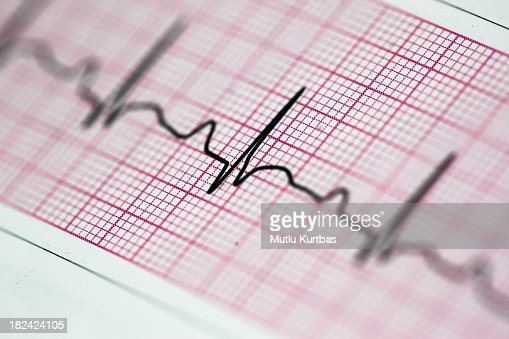 Up close photo of an electrocardiogram reading