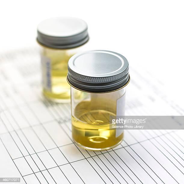 Urine samples
