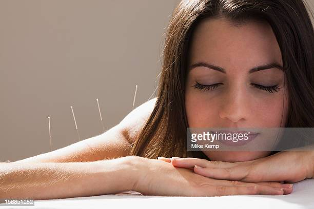 USA, Utah, Orem, Close-up of woman with acupuncture needles in her arm and shoulders