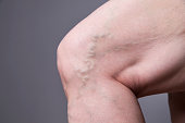 Varicose veins closeup. Thick female legs on a gray background