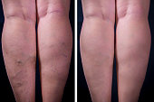 Varicose veins on dark background. Before and after. Studio shot