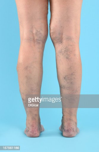 Varicose Vien on legs and feet : Stock Photo