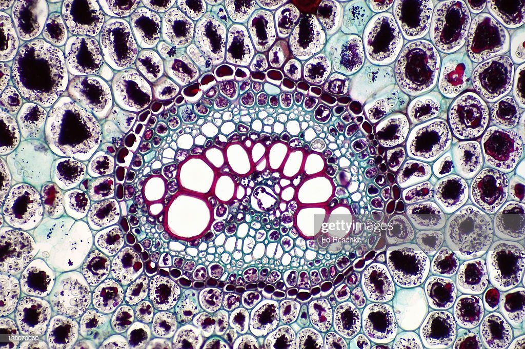 http://media.gettyimages.com/photos/vascular-bundle-in-a-fern-rhizome-bracken-fern-shows-a-single-bundle-picture-id128070060?k=6&m=128070060&s=170667a&w=0&h=b5MgTMZ6nfbCArOwQxBIa_7f-CckUio4Dh-viO7kO1k=