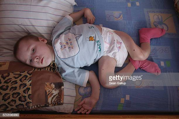 Vasilii who was born with severe birth defects and is the size of a small child lies in his bed at the Vesnova Home for Invalid Children where his...