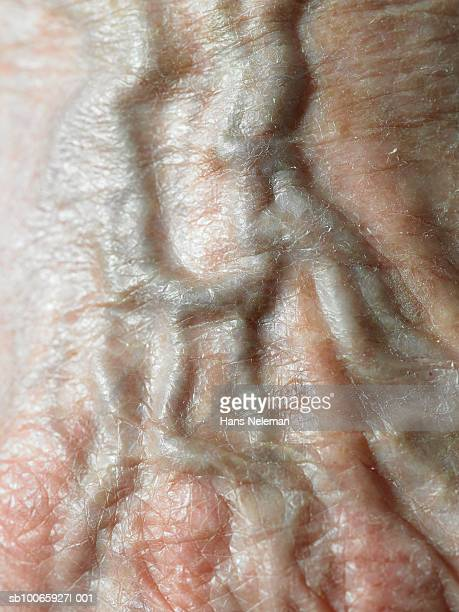 Vein of human hand, close-up