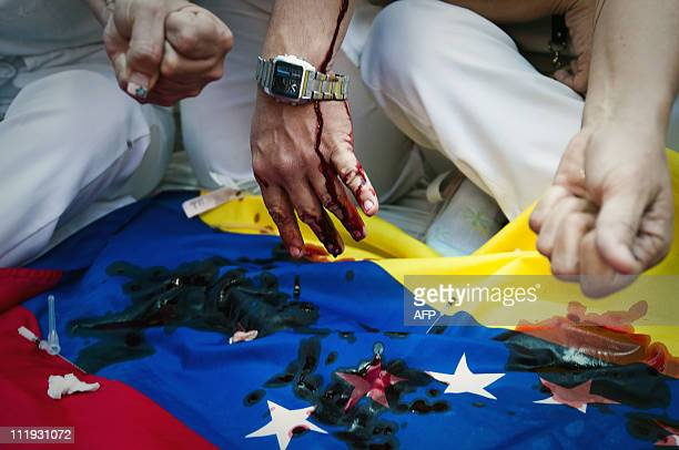 Venezuelan nurses extract their blood on a Venezuelan flag during a protest in support of mates who have been holding a hunger strike for 20 days...
