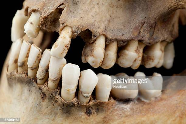 rotten teeth stock photos and pictures | getty images, Human Body