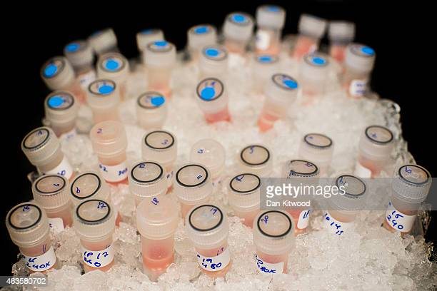 Vials containing biological samples are stored on ice to keep them fresh before being analysed at the Cancer Research UK Cambridge Institute on...