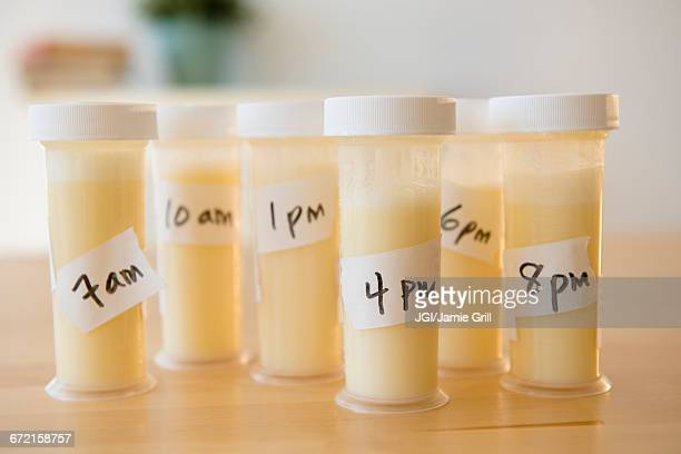 Vials of breast milk with time
