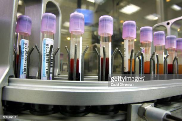Vials of human blood are processed as they lie on an automated testing line at the Maccabi Health Services HMO central laboratory January 22 2006 in...