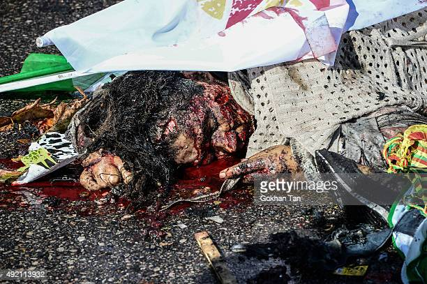 A victim at the blast scene after an explosion during a peace march in Ankara October 10 2015 in Ankara Turkey At least 30 people have been killed...