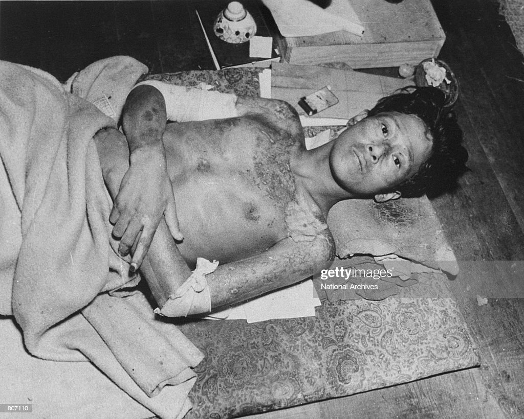 A victim of the atomic bomb explosion in 1945 over Nagasaki Japan