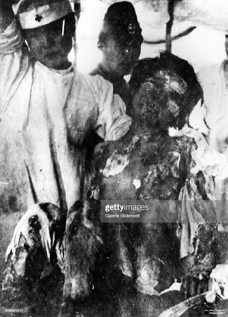 A victim of the atomic bomb in Nagasaki 11th August 1945 A 14yearold girl with her skin hanging in strips is being treated at Ohmura Navy Hospital...