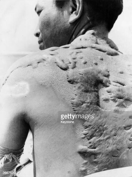 A victim of the atomic bombing of Hiroshima