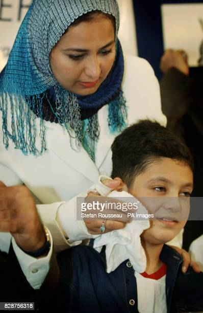 Victim of the war in Iraq Ali Ismaeel Abbas during a press conference at Queen Mary's Hospital Roehampton in south London Abbas who lost both arms in...