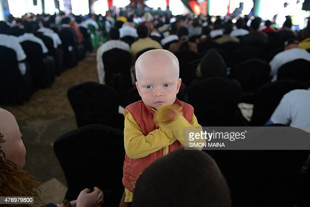 Victor plays with his mother during a conference to mark the International Albinism Awareness Day in June 13 2015 Nairobi to raise awareness of the...