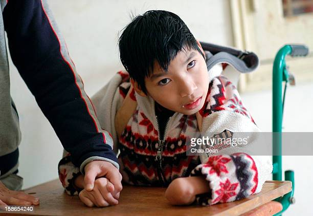 Vietnamese Agent Orange child victim plays inside the Ha Tay Peace Village 20km west of Hanoi These children are deformed or mentally ill since born...