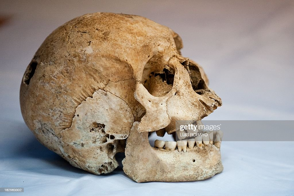 View of a skull of pre-Hispanic indigenous man at the Pre-Hispanic Ossuarty in Cali, Colombia, on September 30, 2013. The ossuary preserves some 250 bone collections and 220 dental collections of the Sonso, Late Quimbaya, Bolo-Quebrada Seca, Piartal and Tuza cultures, which inhabited the southwest of Colombia between 500 and 1500 AD.