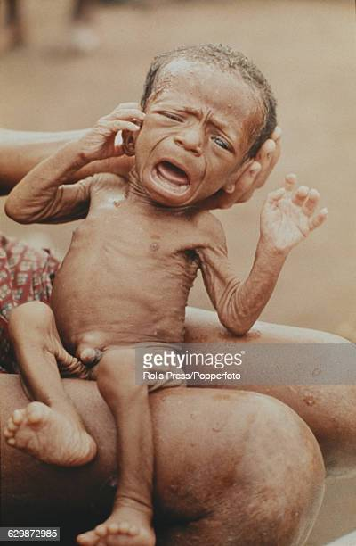 View of a starving and emaciated young child from the Biafra region being cradled on the knee of an adult in a camp during the Nigerian Biafran civil...