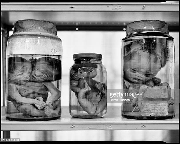 View of glass jars at Tu Du Hospital which contain foetuses deformed as a result of the United States' herbicidal warfare program during the Vietnam...