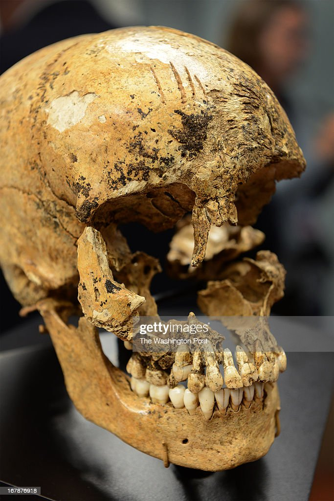View of the skull remains of 'Jane', a 17th teenager from Jamestown at the Museum of Natural History in Washington, DC on May 1, 2013. At a press conference today they unveiled a facial reconstruction of what they believe she looked like. Forensic experts believe that after examining the incomplete skull and tibia of the girl, that after her death, she was consumed by colonists there during a rough winter of 1609-1610 wherein 200 colonists died. The find of physical evidence by Jamestown Archeologists reveals startling survival tactics at the historic colony. Among others, they note the shallow chopping marks on her forehead representing a failed attempt to open the skill. Scientists were able to determine that 'Jane', was age 14, from England but they could not determine cause of death. On May 3rd the facial reconstruction will be on display at the museum. The skeletal remains will be on display at Historic Jamestowne near the discovery site on Jamestown Island.